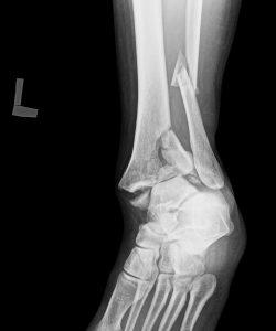 足関節粉砕骨折 | 医療法人社団健友会 岡本整形外科 | 宮崎市の整形外科